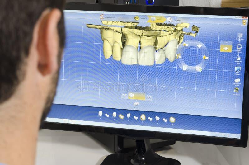 Οδοντική εργασία τεχνικών στοκ εικόνα
