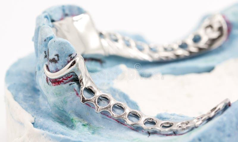 Οδοντική κάμψη καλωδίων στοκ εικόνες