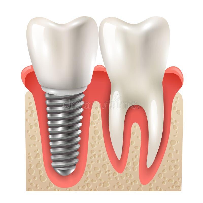 Οδοντικό μοσχευμάτων πρότυπο κινηματογραφήσεων σε πρώτο πλάνο δοντιών καθορισμένο απεικόνιση αποθεμάτων