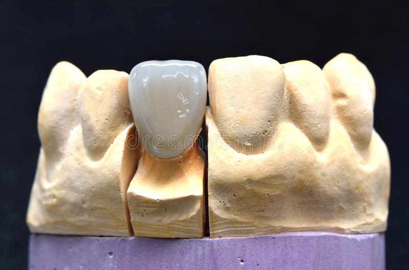 Οδοντικό μόσχευμα δοντιών πορσελάνης στοκ εικόνες