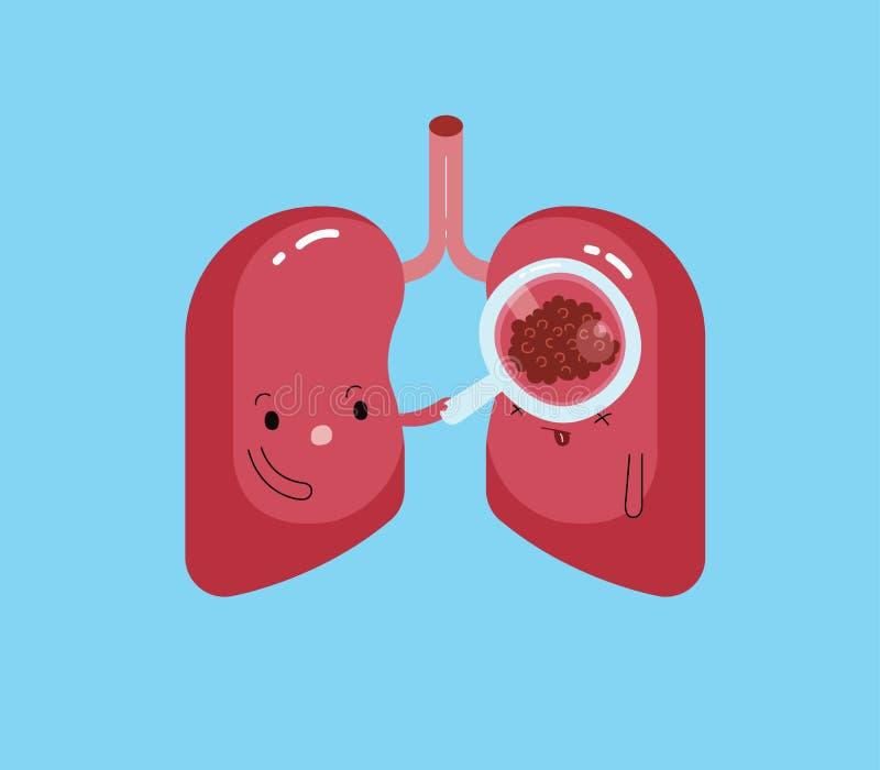 Ο πνεύμονας ανακαλύπτει το καρκίνο του πνεύμονα, ασθένεια του πνεύμονα, κινούμενα σχέδια διανυσματική απεικόνιση