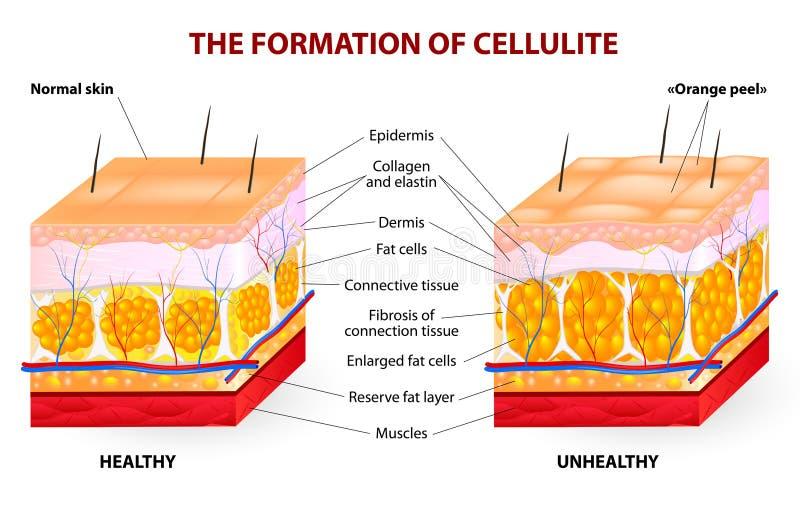 Ο σχηματισμός του cellulite. Διανυσματικό διάγραμμα διανυσματική απεικόνιση