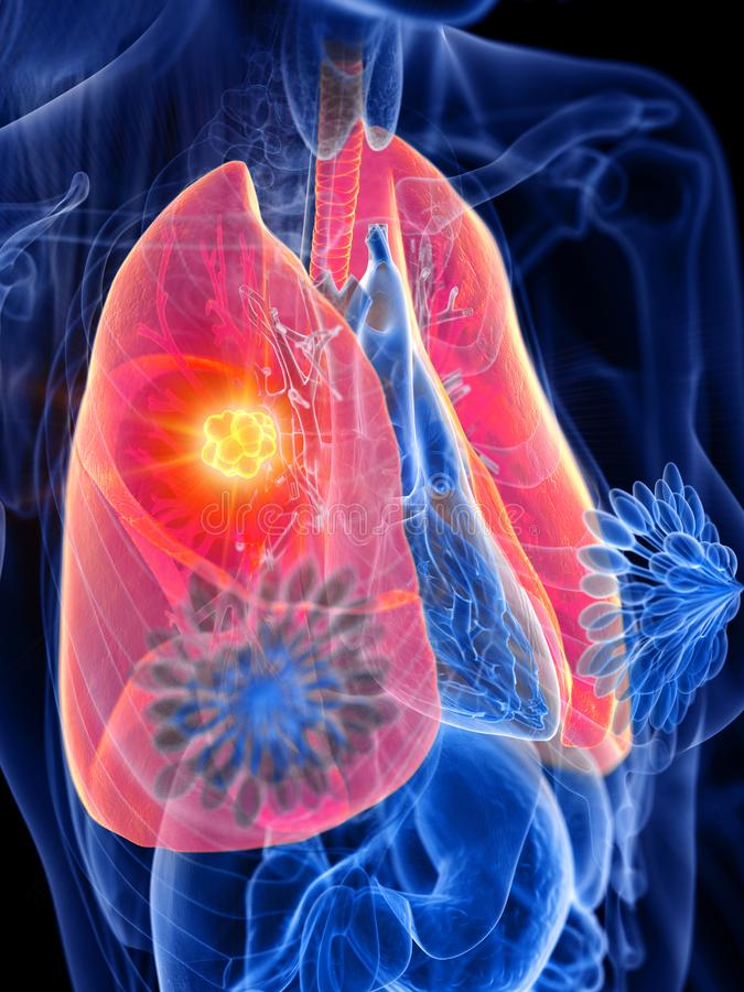ο όγκος πνευμόνων μιας γυναίκας διανυσματική απεικόνιση