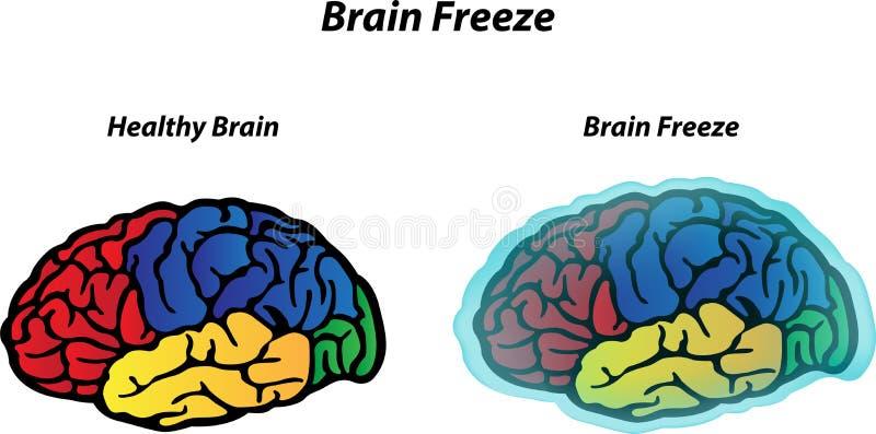 Πάγωμα εγκεφάλου διανυσματική απεικόνιση