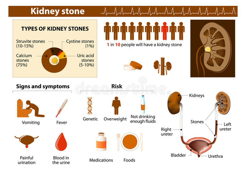 Πέτρα νεφρών ελεύθερη απεικόνιση δικαιώματος
