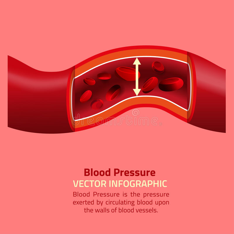 Πίεση του αίματος Infographic διανυσματική απεικόνιση
