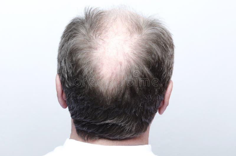 Πίσω του αρσενικού φαλακρού κεφαλιού Έννοια της φαλάκρας στοκ φωτογραφίες με δικαίωμα ελεύθερης χρήσης