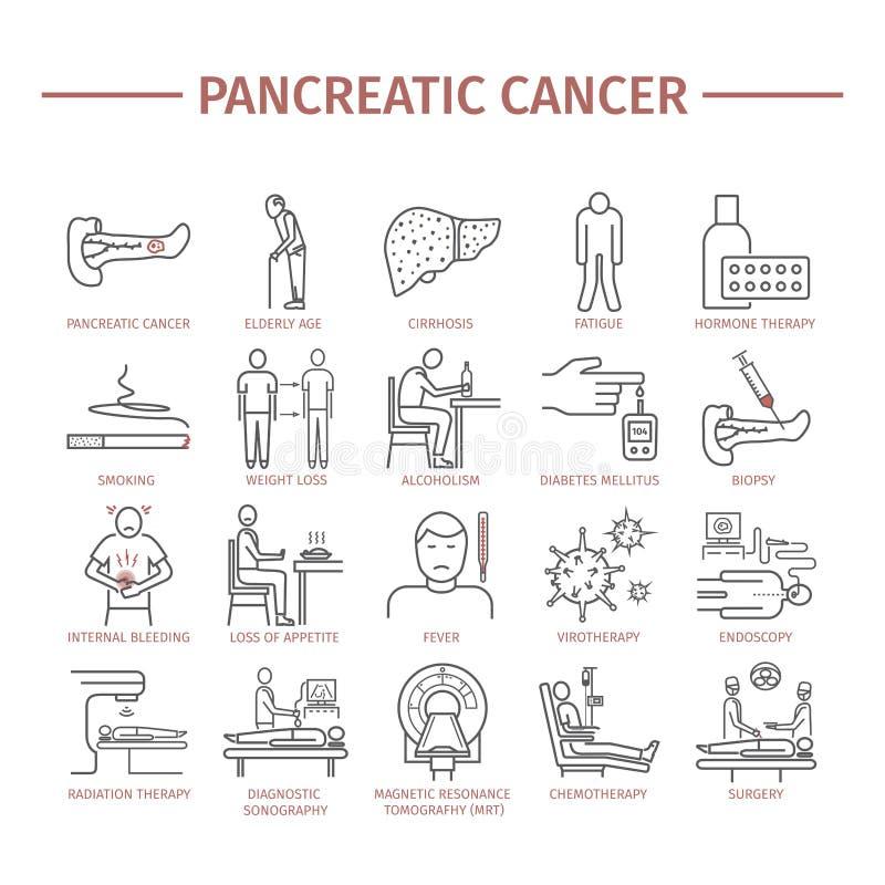 Παγκρεατικά συμπτώματα καρκίνου παγκρεάτων αιτίες ελεύθερη απεικόνιση δικαιώματος