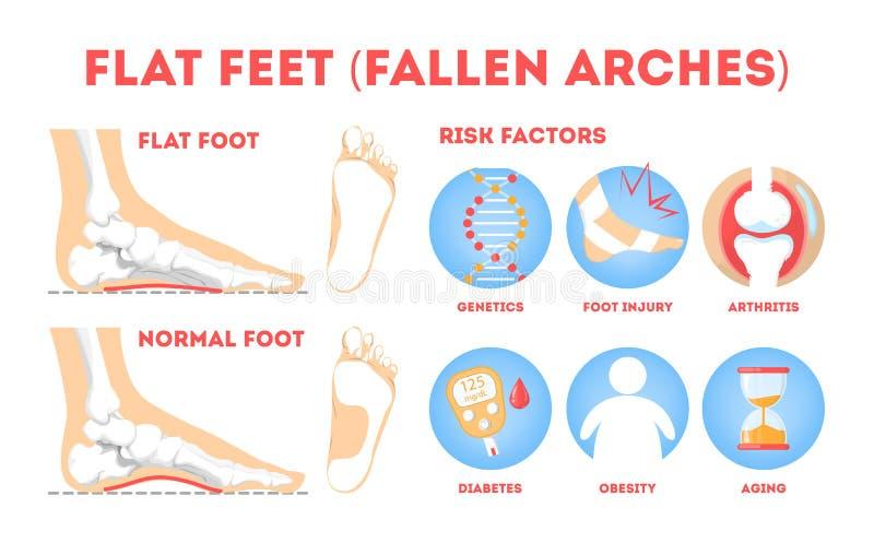 Παθολογίες ποδιών infographic Επίπεδη ανατομία ποδιών Παραμορφωμένος ελεύθερη απεικόνιση δικαιώματος
