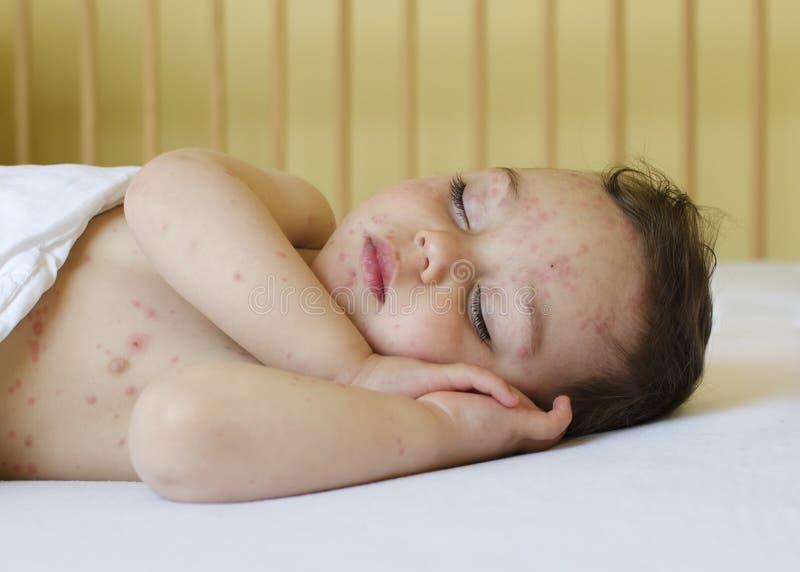 Παιδί με τη φλυκταινώδη νόσο κοτόπουλου στοκ εικόνες