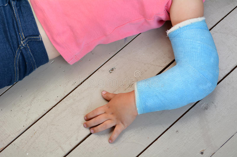 Παιδί με το βραχίονα χυτό στοκ εικόνες