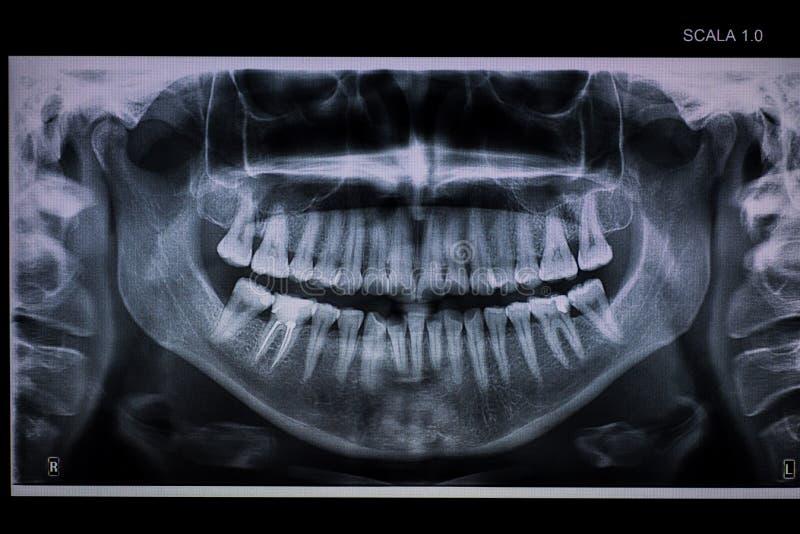 Πανοραμική οδοντική ακτίνα X με ένα κανάλι ρίζας στοκ εικόνες με δικαίωμα ελεύθερης χρήσης