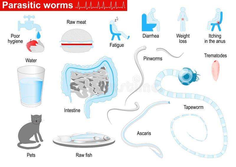 Παρασιτικά σκουλήκια Ιατρικό σύνολο Infographic διανυσματική απεικόνιση