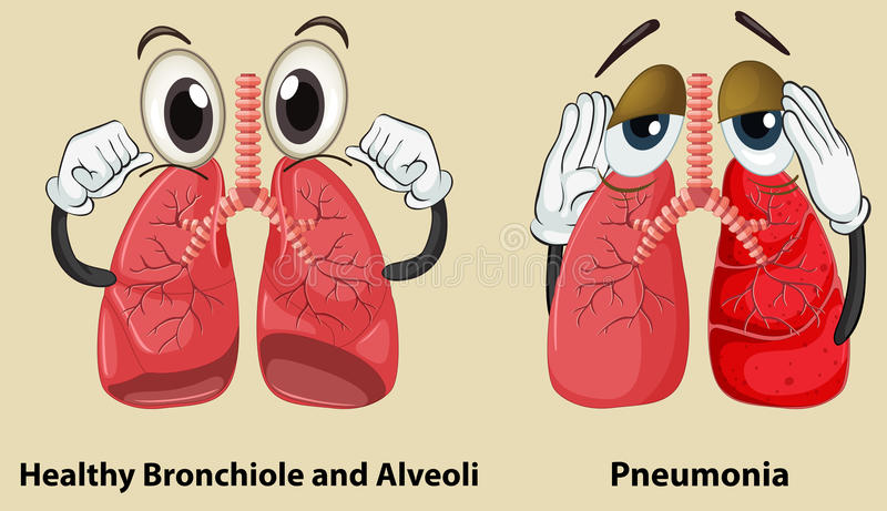 Παρουσίαση διαγραμμάτων υγιής και πνεύμονες πνευμονίας διανυσματική απεικόνιση