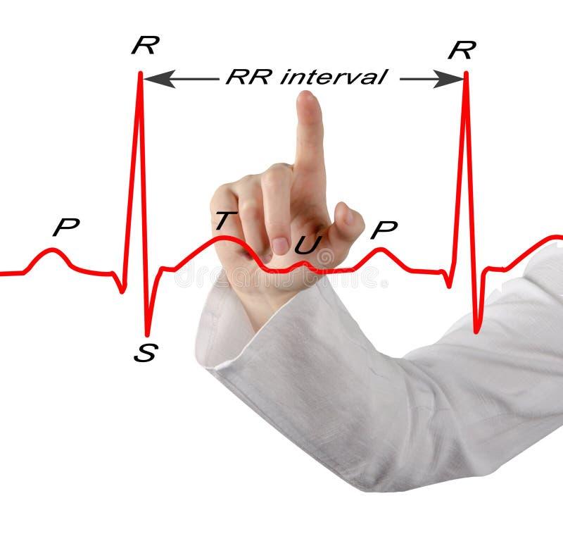 Παρουσίαση χαρακτηρισμένου ECG στοκ εικόνα