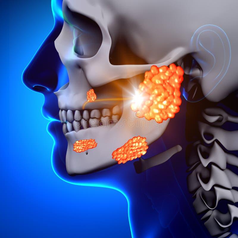 Παρωτίτιδα/Parotid αδένας - ασθένεια διανυσματική απεικόνιση