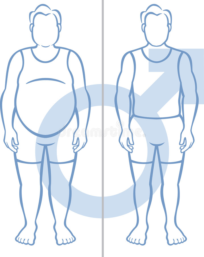 παχυσαρκία ατόμων ελεύθερη απεικόνιση δικαιώματος