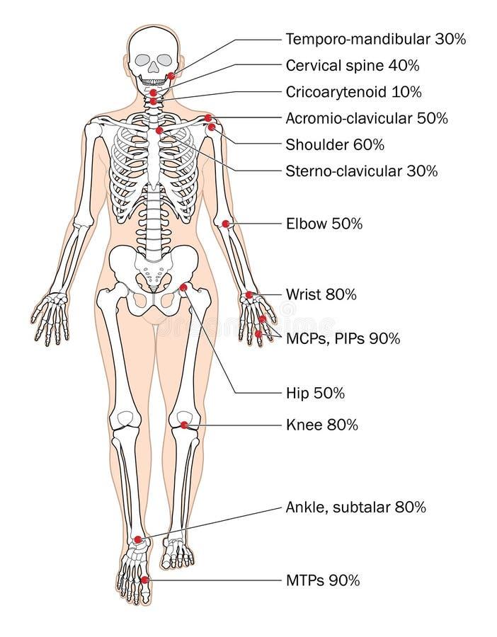 Περιοχές του RA διανυσματική απεικόνιση