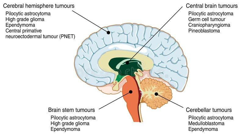 Περιοχές των διάφορων όγκων εγκεφάλου διανυσματική απεικόνιση