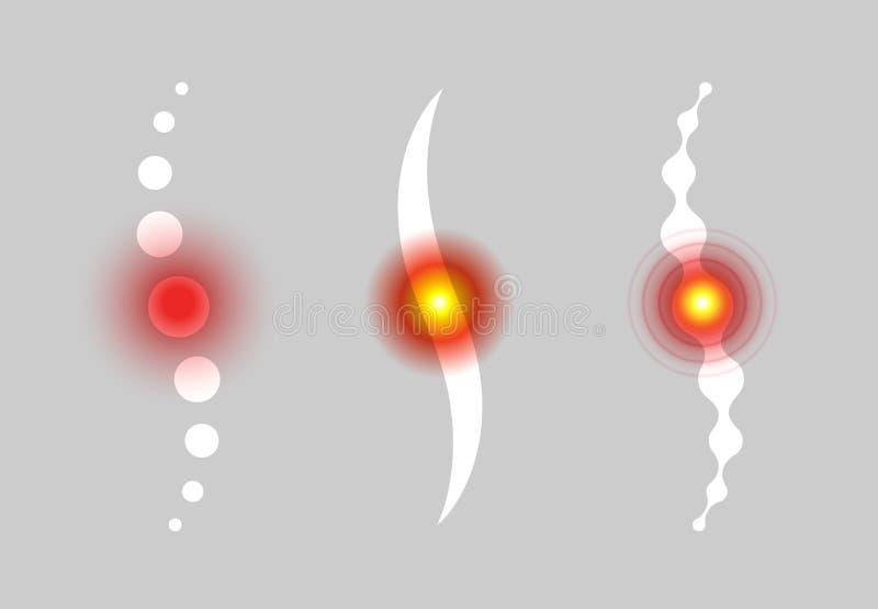 Περιοχή πόνου σπονδυλικών στηλών Αφηρημένα διανυσματικά εικονίδια πόνου στην πλάτη Ιατρικά infographic στοιχεία επίσης corel σύρε διανυσματική απεικόνιση