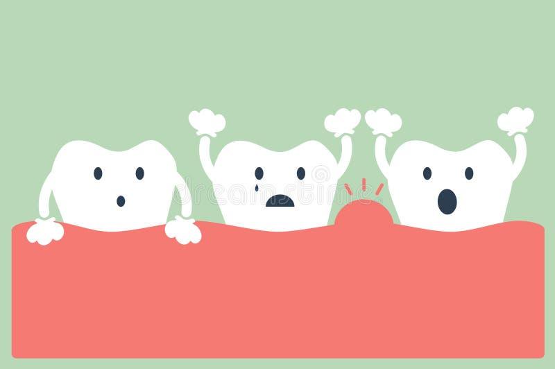 Περιοδοντική ασθένεια δοντιών απεικόνιση αποθεμάτων