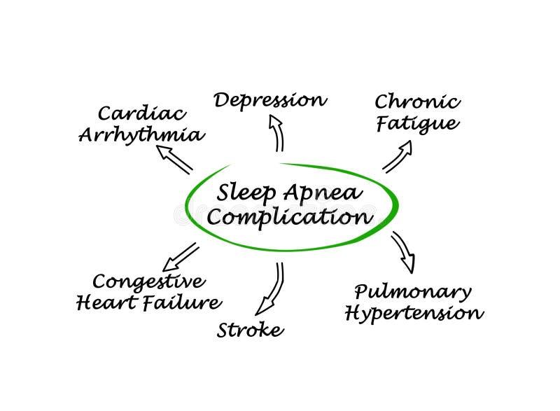 Περιπλοκή της ασφυξίας ύπνου ελεύθερη απεικόνιση δικαιώματος