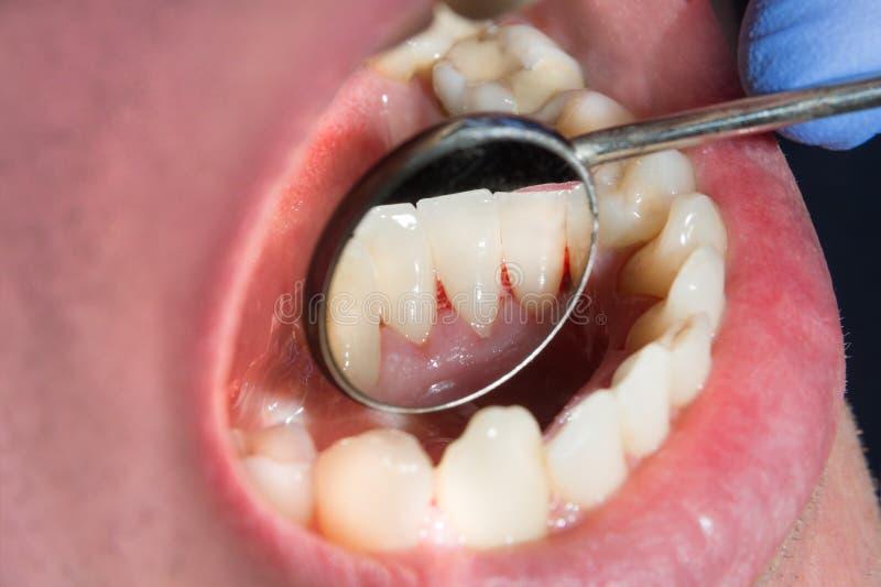 Πινακίδα του ασθενή, πέτρα Επεξεργασία οδοντιατρικής του οδοντικού plaq στοκ εικόνες