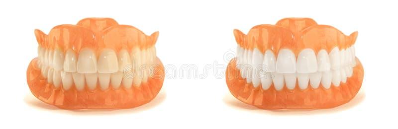 Πλήρης κινηματογράφηση σε πρώτο πλάνο οδοντοστοιχιών οδοντοστοιχιών Ορθοπεδική οδοντιατρική με εμείς στοκ φωτογραφίες