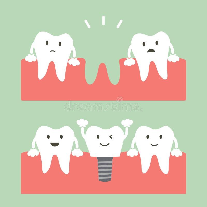 Πλήρωση του οδοντικού μοσχεύματος με την κορώνα, πριν και μετά διανυσματική απεικόνιση