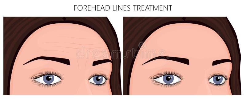 Πλαστική επεξεργασία γραμμών surgery_Forehead απεικόνιση αποθεμάτων