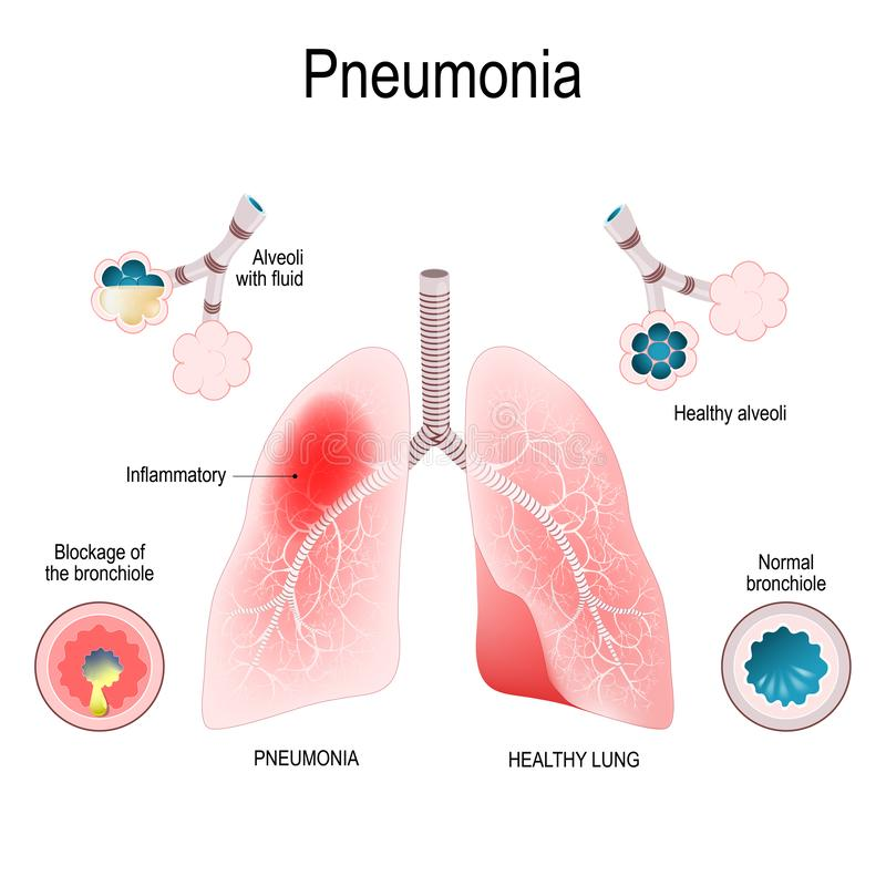 πνευμονία Διαφορά και σύγκριση των υγιών βρογχιολίων πνευμόνων και των φατνίων και της πνευμονίας διανυσματική απεικόνιση