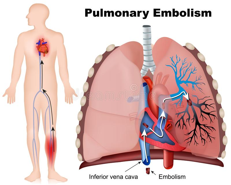 Πνευμονική ιατρική απεικόνιση εμβολισμού με την περιγραφή στο άσπρο υπόβαθρο απεικόνιση αποθεμάτων