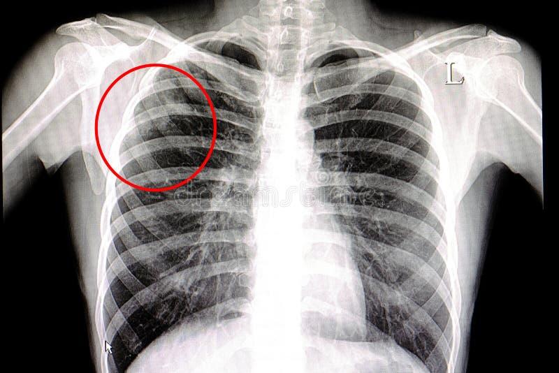 πνευμονική φυματίωση στοκ εικόνες