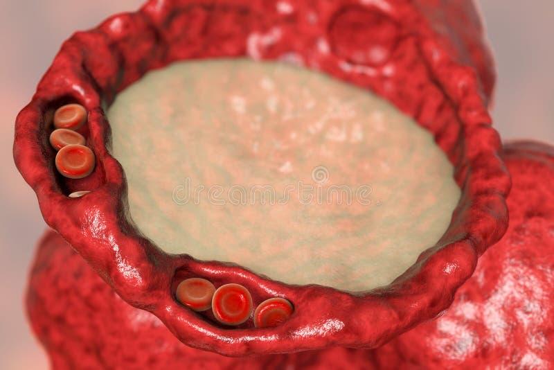 Πνευμονικό οίδημα, άποψη κινηματογραφήσεων σε πρώτο πλάνο της διατομής φατνίων που παρουσιάζει υγρό στο φατνίο διανυσματική απεικόνιση