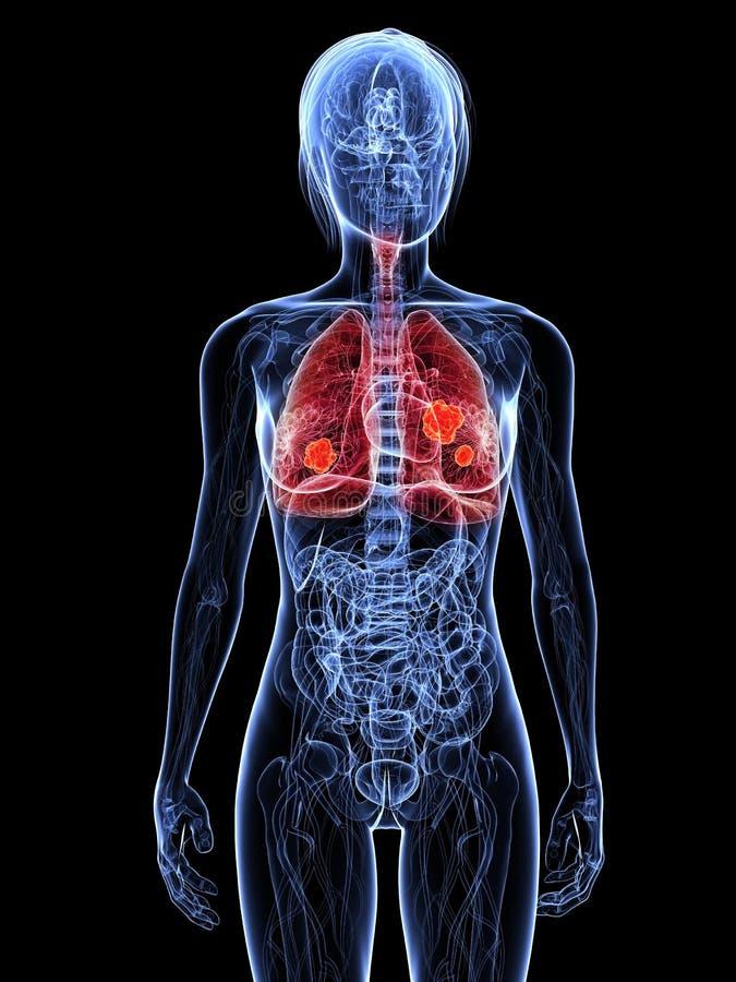πνεύμονας καρκίνου διανυσματική απεικόνιση