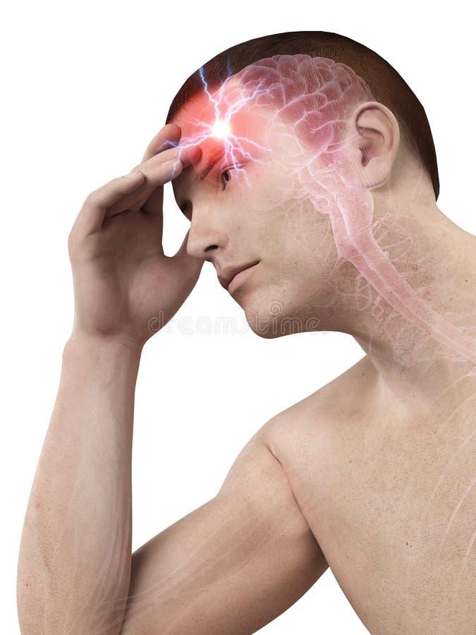 Πονοκέφαλος/migrim διανυσματική απεικόνιση