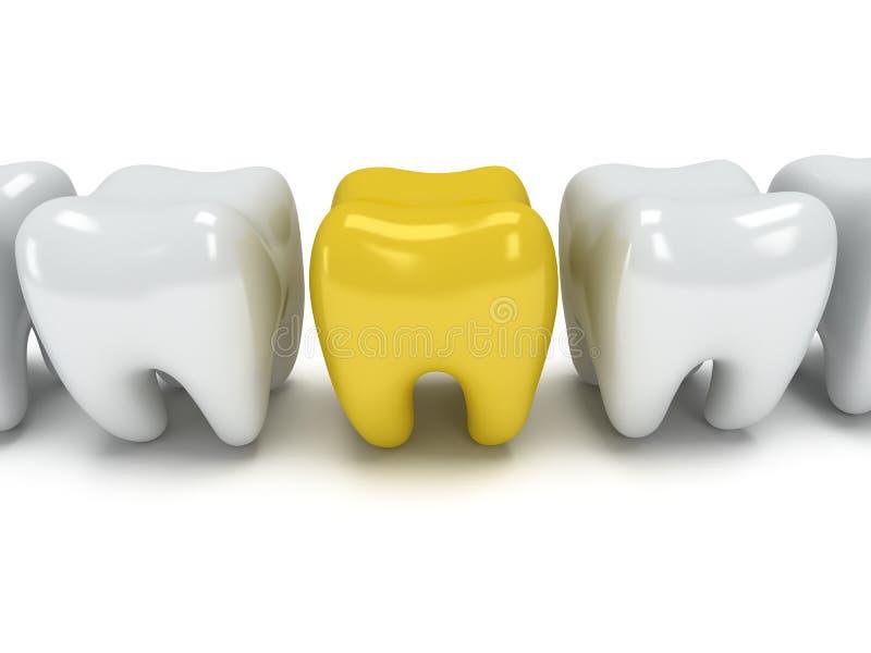 Πονώντας δόντι στη σειρά των υγιών δοντιών ελεύθερη απεικόνιση δικαιώματος