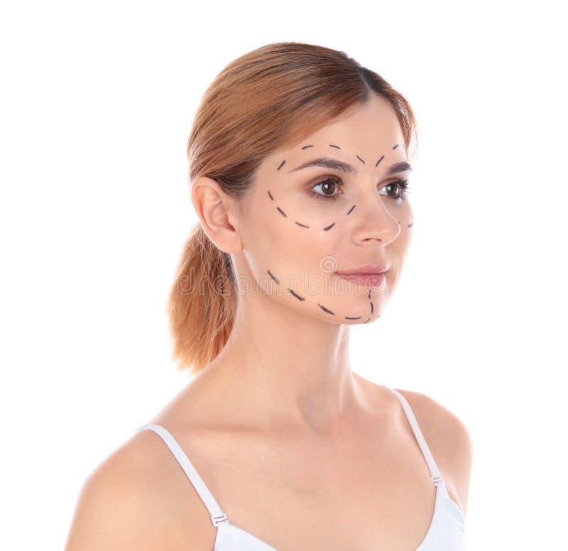 Πορτρέτο της γυναίκας με τα σημάδια στο πρόσωπο για τη λειτουργία αισθητικής χειρουργικής στοκ φωτογραφία με δικαίωμα ελεύθερης χρήσης