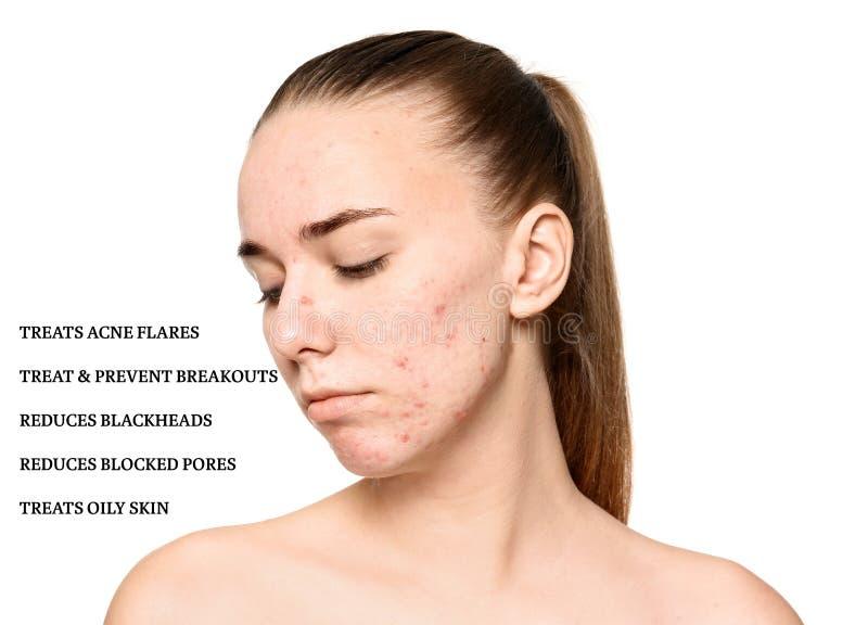 Πορτρέτο της νέας γυναίκας με το δέρμα και τον κατάλογο προβλήματος στοκ εικόνες