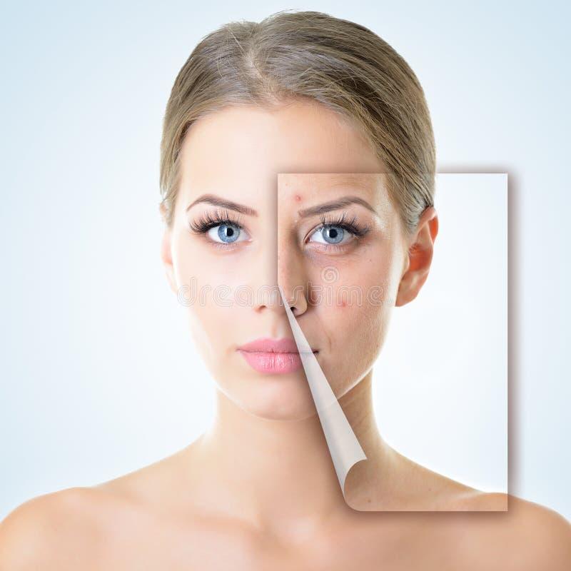 Πορτρέτο της όμορφης γυναίκας με το πρόβλημα και το καθαρό δέρμα, γήρανση α στοκ εικόνες