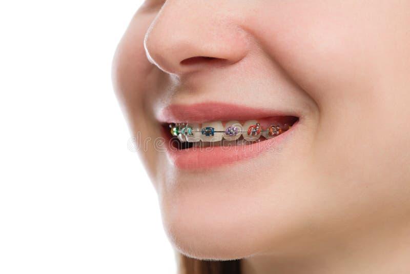 Πολύχρωμα στηρίγματα κινηματογραφήσεων σε πρώτο πλάνο στα δόντια Όμορφο θηλυκό χαμόγελο por στοκ φωτογραφία