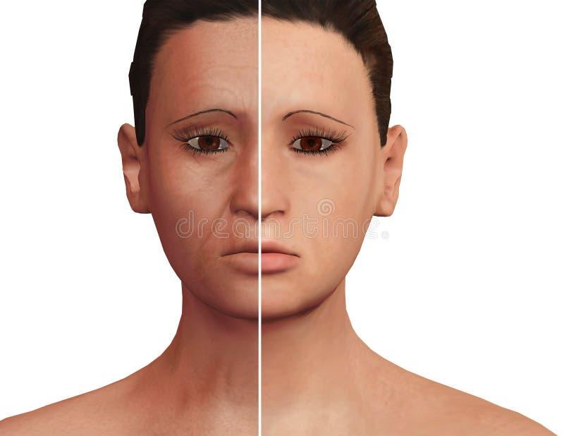 Πριν και μετά από την αισθητική διαδικασία της αναζωογόνησης μετά από τη θεραπεία PRP Του προσώπου δερματολογική επεξεργασία ελεύθερη απεικόνιση δικαιώματος