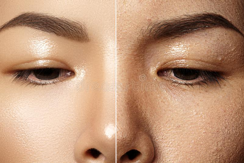 Πριν και μετά από την καλλυντική επεξεργασία Θηλυκό δέρμα προσώπου κινηματογραφήσεων σε πρώτο πλάνο Καλλυντική διαδικασία, θεραπε στοκ φωτογραφία με δικαίωμα ελεύθερης χρήσης