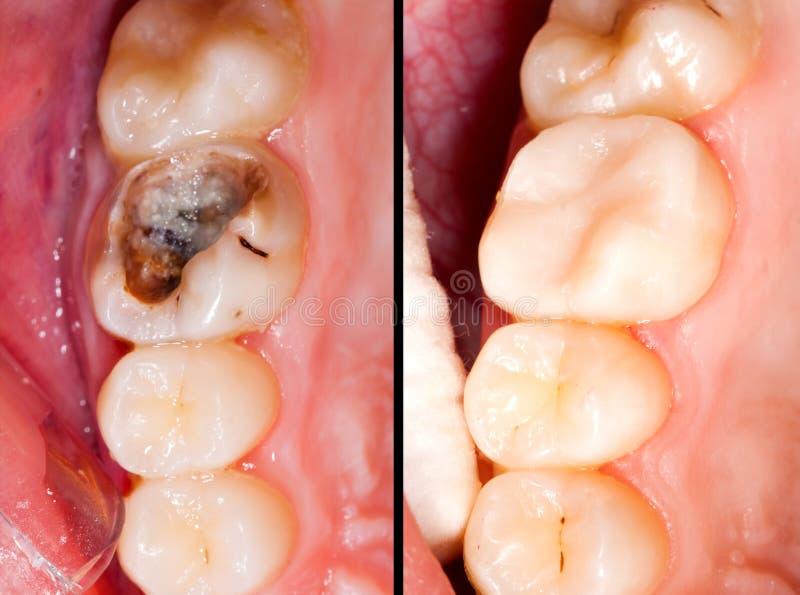 Πριν και μετά από στοκ εικόνα με δικαίωμα ελεύθερης χρήσης