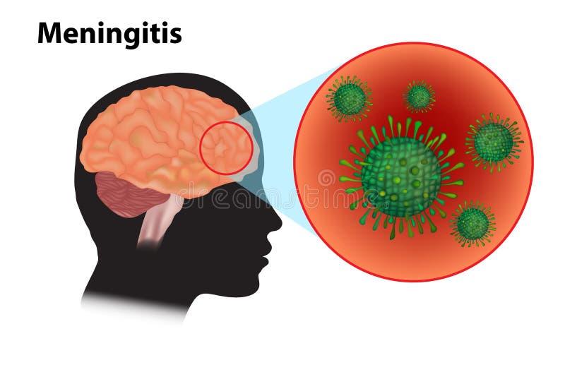 Προερχόμενες από ιό μηνιγγίτιδα και εγκεφαλίτιδα διανυσματική απεικόνιση