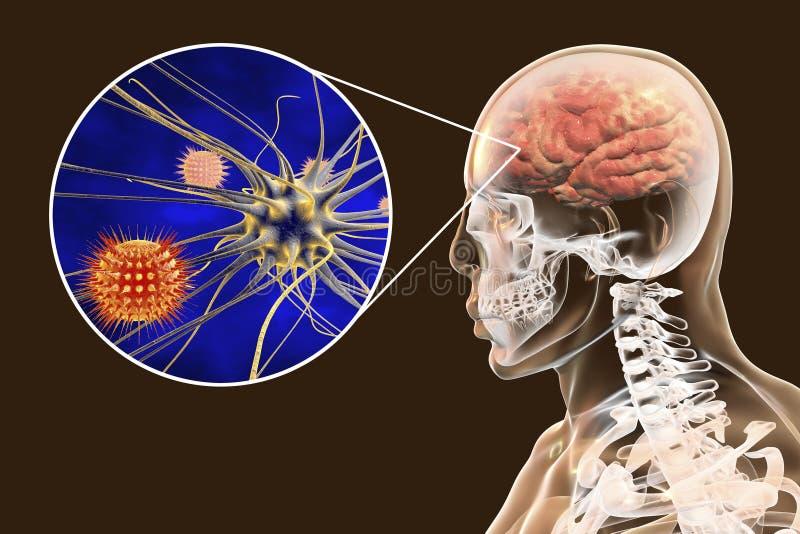 Προερχόμενες από ιό μηνιγγίτιδα και εγκεφαλίτιδα, ιατρική έννοια ελεύθερη απεικόνιση δικαιώματος