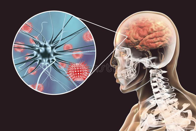 Προερχόμενες από ιό μηνιγγίτιδα και εγκεφαλίτιδα, ιατρική έννοια απεικόνιση αποθεμάτων