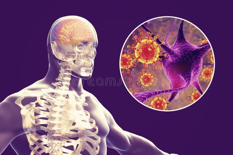 Προερχόμενες από ιό μηνιγγίτιδα και εγκεφαλίτιδα, ιατρική έννοια διανυσματική απεικόνιση