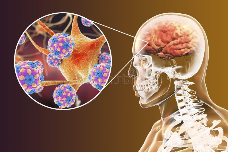 Προερχόμενη από ιό εγκεφαλίτιδα, εγκέφαλος και νευρώνες που μολύνονται από τους ιούς διανυσματική απεικόνιση