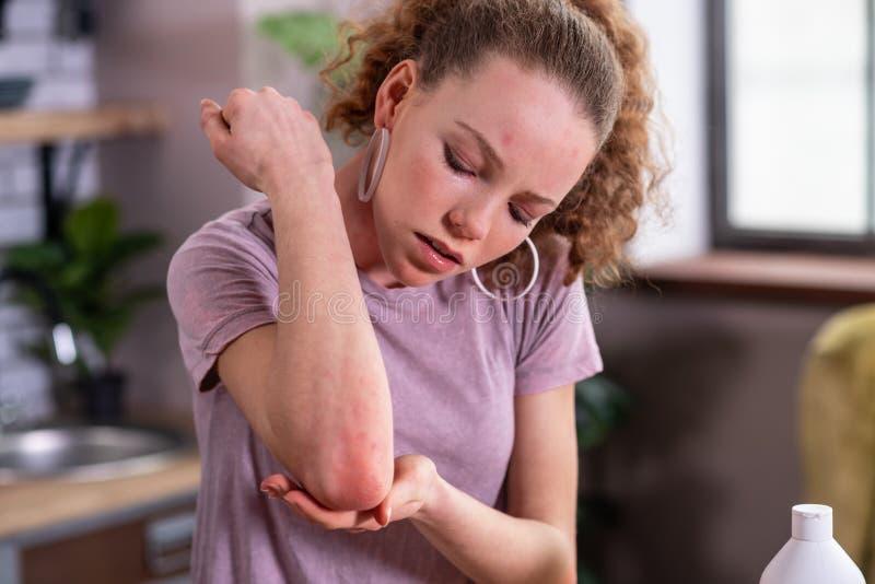 Προσεκτική σγουρή γυναίκα που ανησυχεί για την αλλεργία της στοκ εικόνες